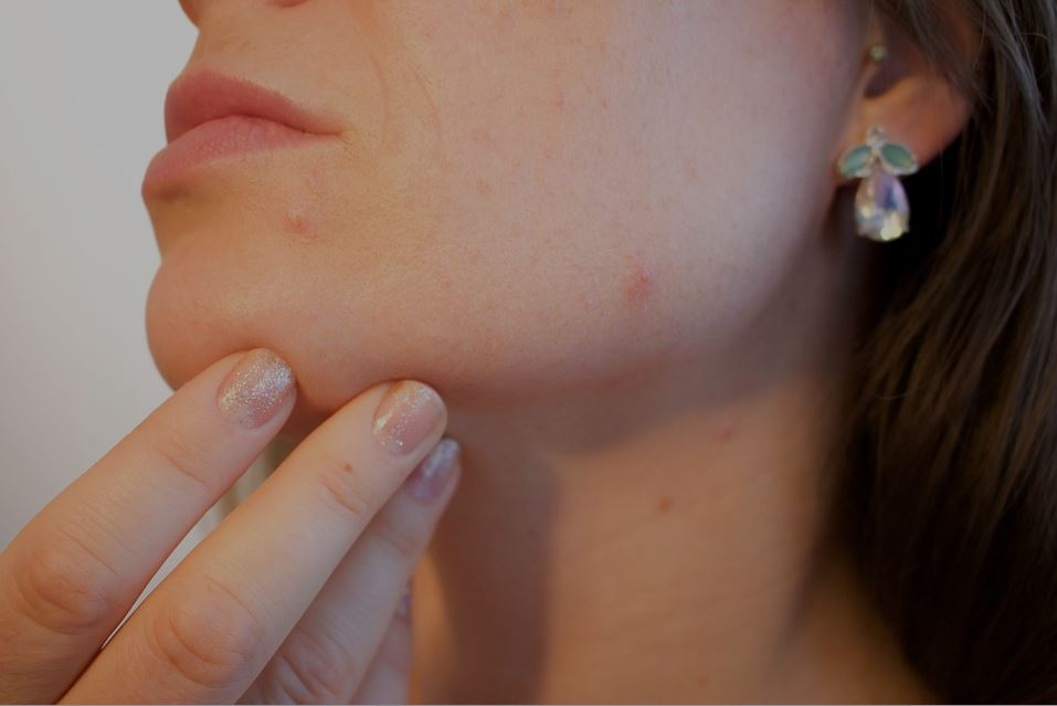 The major concern of Acne