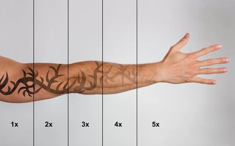 Going for Tattoo Removal -Understanding the Essentials Before the Treatment